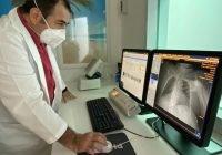 Tomógrafo ha evitado contagios de Covid-19 en Hospital Regional